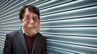 Adam Pearson: Freak Show & The Ugly Face of Disability Hate Crime